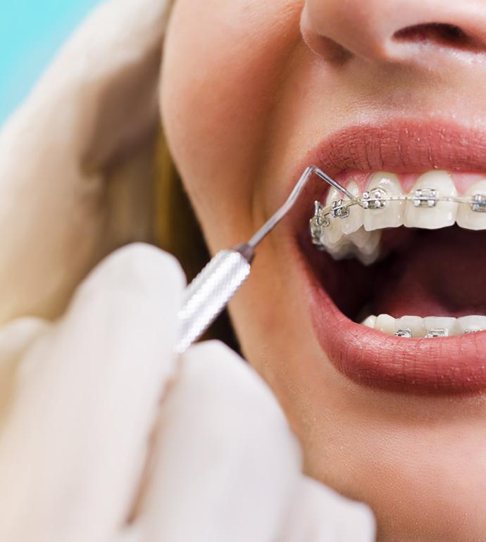 clinique-dentaire-nicolas-beaudoin-service-orthodontie